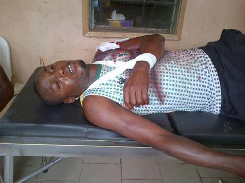 Pillars Gambo injured after robbers attack them